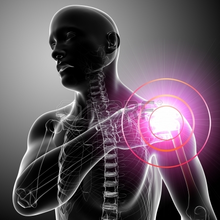 13757763-xray-shoulder-pain-of-male-in-gray