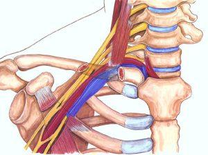 Cierpniecie rąk: Fizjoterapeuta w Wielczce i Nowej Hucie Ortomedicus